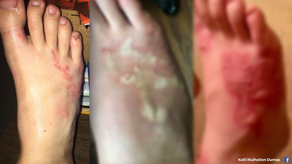 Tęgoryjec dwunastnicy to niewielki, ale groźny pasożyt. Zrobiło się o nim głośno po tym, jak zaatakował 17-letniego Michaela Dumasa na plaży na Florydzie
