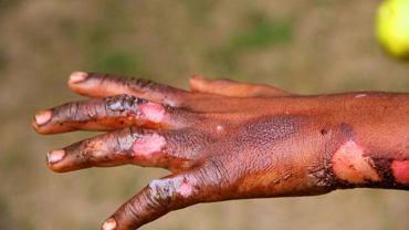 Ciężkie, pokrywające znaczna część ciała oparzenia wymaga hospitalizacji i podania płynów nawadniających oraz antybiotyków, aby nie dopuścić do wtórnej infekcji