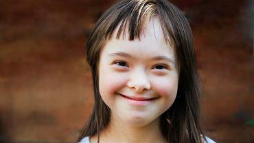Zespół Downa jest najczęstszą przyczyną uwarunkowanego genetycznie niedorozwoju umysłowego w populacji ludzkiej