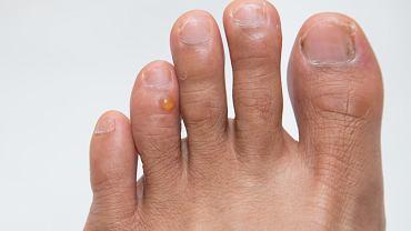 Potnica to choroba skóry, która charakteryzuje się wysypką. W obrębie dłoni i stóp tworzą się małe swędzące pęcherze