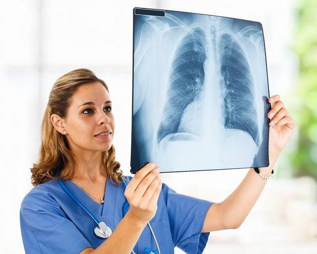 POChP to przewlekła obturacyjna choroba płuc, która najczęściej atakuje osoby palące