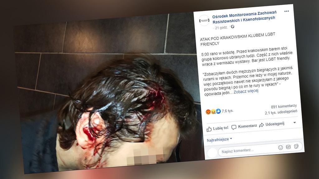 Kraków. Przed klubem dla osób LGBT doszło do pobicia. Rannemu mężczyźnie założono pięć szwów