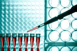 Limfocyty - normy