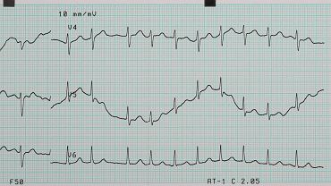 Arytmia serca to sytuacja, kiedy serce przyspiesza lub zwalnia bez powodu. Nie jest to choroba, a jej objaw.