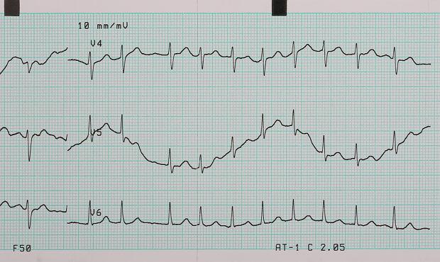 Arytmia serca, czyli zaburzenia rytmu pracy serca