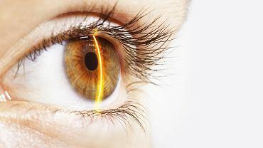 W naczyniach oka widać zbyt wysoki poziom cholesterolu zapowiadający miażdżycę i chorobę niedokrwienną serca
