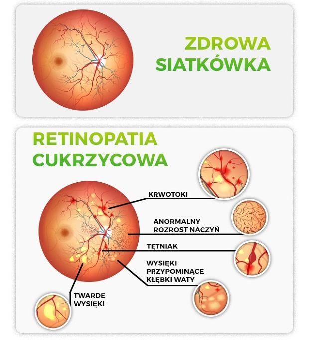 Najczęstszym powikłaniem, ze strony narządu wzroku, które pojawia się u osób chorujących na cukrzycę jest retinopatia cukrzycowa. Zbyt wysoki poziom cukru uszkadza naczynia krwionośne w oku co prowadzi do zmian w obrębie siatkówki