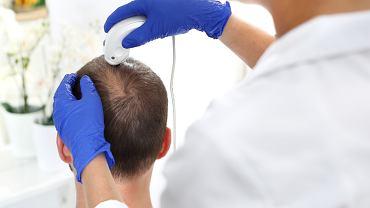 Trycholog - to specjalista od dolegliwości ze skórą głowy oraz problemów z włosami