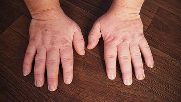 Akromegalia charakteryzuje się postępującą zmianą wyglądu zewnętrznego (m.in. powiększenie rąk i stóp), a także powikłaniami narządowymi.