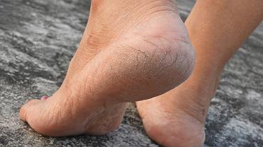 Prosty, tani i skuteczny sposób na suche i popękane pięty. Wystarczy trik z sodą oczyszczoną (zdjęcie ilustracyjne)