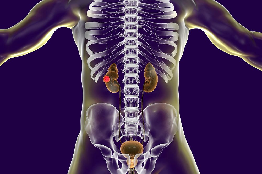 Rak nerki: objawy, diagnoza, leczenie