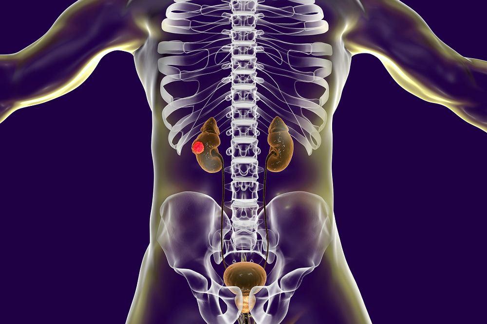 Rak nerki zaliczany jest do jednych z najrzadziej występujących i diagnozowanych nowotworów. Schorzenie znacznie częściej rozwija się u mężczyzn i bardzo długo nie daje żadnych objawów