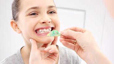 Wady zgryzu u dzieci to zaburzenia w budowie i czynnościach narządów jamy ustnej