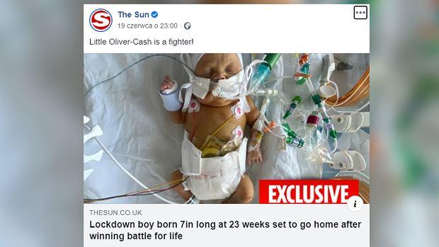Dziecko urodziło się w 23. tygodniu ciąży. Było mniejsze niż pilot do telewizora