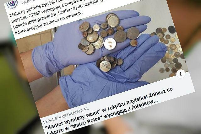 Lekarze apelują, aby uważniej pilnować małych dzieci, które połykają różne przedmioty i trafiają do szpitali