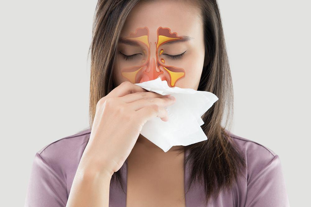 Zapalenie zatok objawia się przede wszystkim katarem i bólem głowy, które nie mijają tak szybko jak przy zwykłym przeziębieniu