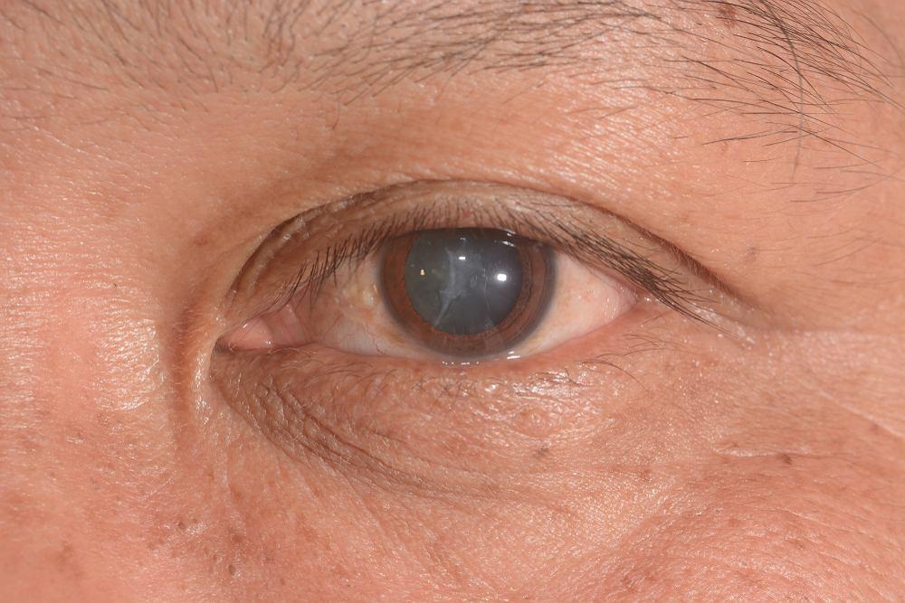 Zaćma, nazywana też kataraktą, charakteryzuje się częściowym lub całkowitym zmętnieniem soczewki oka