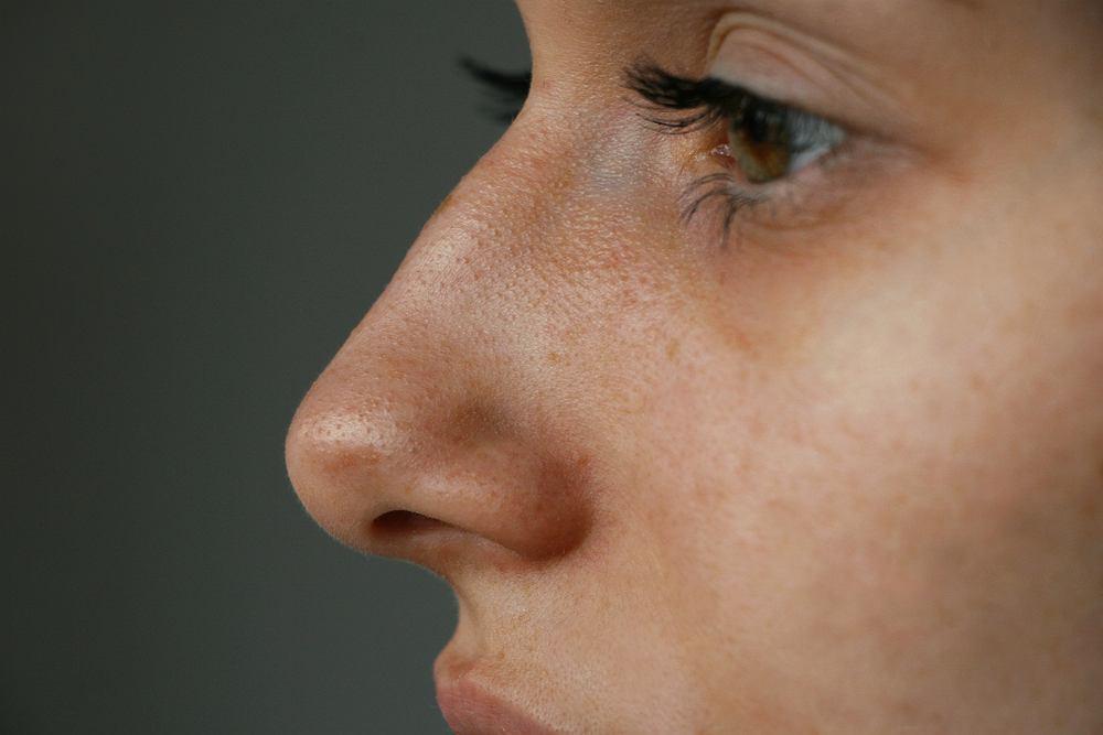 Utrata węchu i smaku może być oznaką koronawirusa