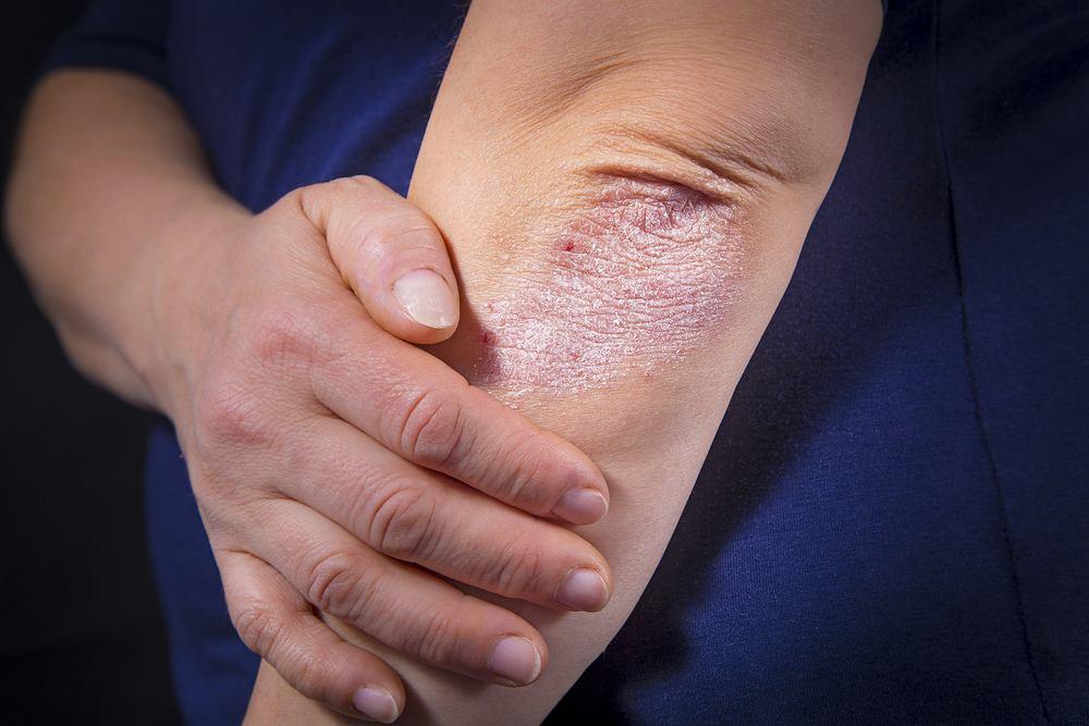 Łuszczyca to przewlekła choroba charakteryzująca się powstawaniem zmian na skórze. Wyglądem przypomina czerwone, łuszczące się, zrogowaciałe plamy, którym towarzyszy uporczywe swędzenie.