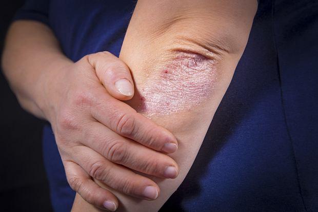 Łuszczyca - przyczyny, objawy, leczenie u dzieci i osób dorosłych