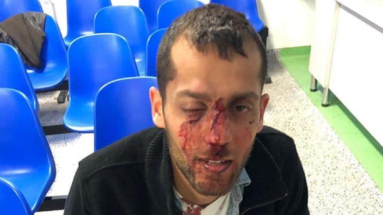 Izraelczyk zaatakowany przed klubem w Warszawie