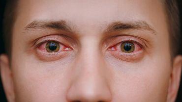 Zapalenie spojówek często pojawia się przy zespole suchego oka, czyli schorzenia, które sprawia, że oko wydziela zbyt mało łez lub ich skład jest niewłaściwy.