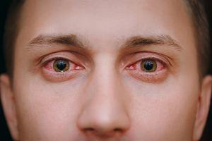 Zapalenie spojówek - skąd się bierze, jakie są rodzaje zapalenia i jak skutecznie walczyć z tym schorzeniem?