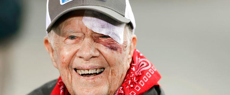 Były prezydent USA Jimmy Carter w szpitalu. Upadł i złamał miednicę