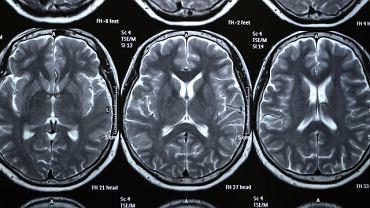 Leczenie głodu narkotykowego poprzez wszczepienie stymulatora do mózgu. Pierwsza taka operacja w USA