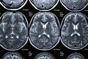 Niedotlenienie mózgu: objawy, skutki, leczenie