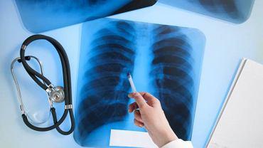 Choroby śródmiąższowe płuc nie mają charakteru infekcyjnego, ani nowotworowego. Czasem zdarza się, że są wywołane długim przyjmowaniem niektórych leków lub powikłaniem po chorobie tkanki łącznej