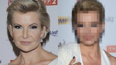 Joanna Racewicz pojawiła się na Telekamerach w białym garniturze z ogromnym dekoltem, ale nasza uwaga skierowała się na jej twarz. Nie wiemy, czy to jedynie kwestia makijażu, ale dziennikarka znów wyglądała inaczej.