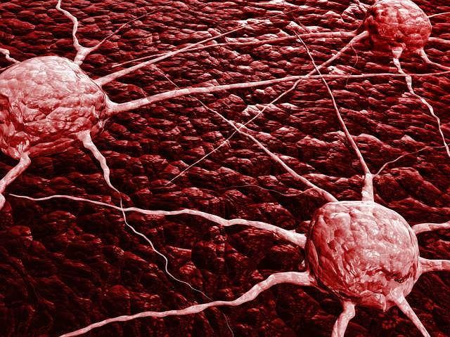 Ze względu na charakter zmian medycyna wyróżnia kilka typów nowotworów: łagodny, złośliwy oraz miejscowo złośliwy