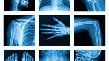 Ta bardzo rzadka choroba może zaatakować dowolną kość w ludzkim organizmie