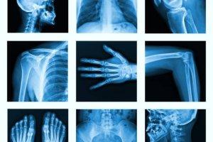 Krzywica: jak zapobiegać krzywicy. Objawy krzywicy, leczenie