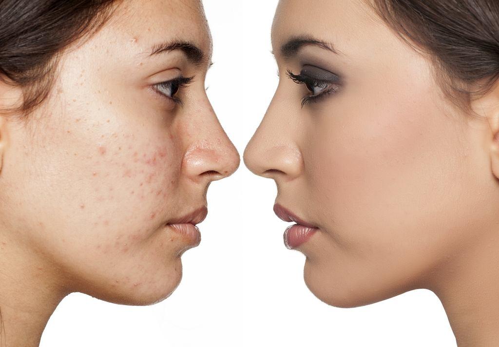 Niedoskonałości skóry twarzy