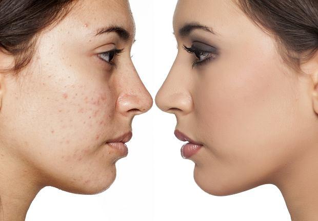 Żegnajcie niedoskonałości skóry twarzy!