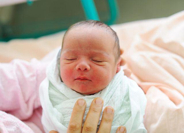 Zbyt mała głowa u nowo narodzonego dziecka może oznaczać chorobę genetyczną