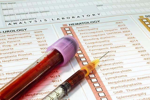 U osób z nadciśnieniem tętniczym konieczne jest wykonanie badań podstawowych, w tym badania krwi