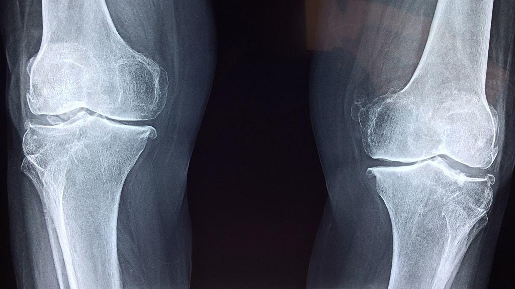 Naukowcy z Belgii i Wielkiej Brytanii znaleźli sposób na to, jak skutecznie i z dużą dokładnością zdiagnozować osteoartretyzm zanim wystąpią objawy choroby