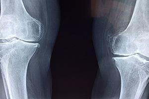 Oddajesz kroplę krwi do badania i już wiesz, czy za dwa lata zachorujesz na artretyzm. Nowe odkrycie