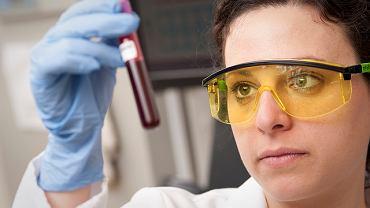 Co to jest bakteriemia i czym się różni od sepsy?