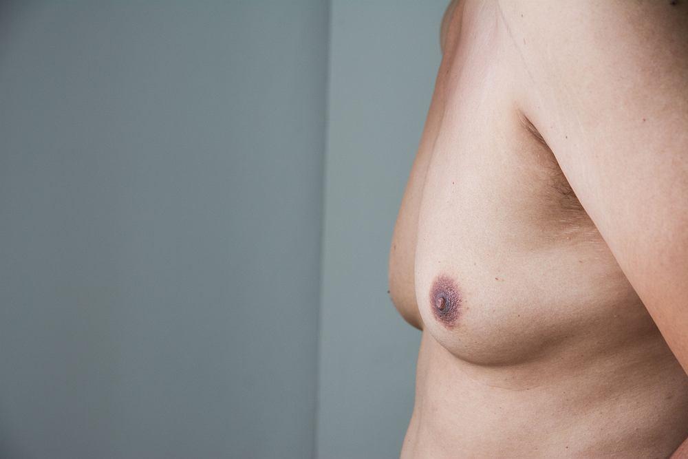 Ginekomastia często jest mylona z lipomastią czyli nadmiernym gromadzeniem się tkanki tłuszczowej wokół piersi