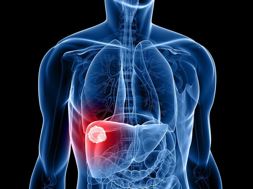 Niestety rak wątroby bardzo długo rozwija się bez objawowo. Pierwsze, zauważalne przez chorego dolegliwości pojawiają się w momencie, gdy choroba jest już bardzo zaawansowana