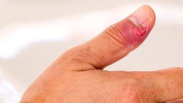 Zanokcica to choroba o podłożu bakteryjnym. Zdjęcie ilustracyjne