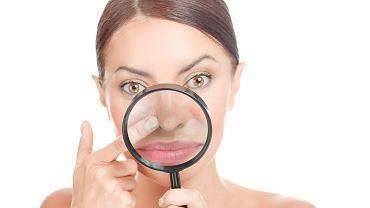 Wągry - istnieje kilka sposobów na pozbycie się ich. Zdjęcie ilustracyjne, HBRH/shutterstock.com