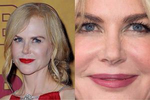 Nicole Kidman to przykład na to, że nadużywanie dobrodziejstw medycyny estetycznej może skończyć się nie najlepiej. Aktorka i piosenkarka jeszcze całkiem niedawno, bo we wrześniu tego roku, zaskoczyła nas jednak niezłym wyglądem. Mieliśmy wrażenie, że ograniczyła stosowanie botoksu. Niestety, najwyraźniej wróciła do starych nawyków.