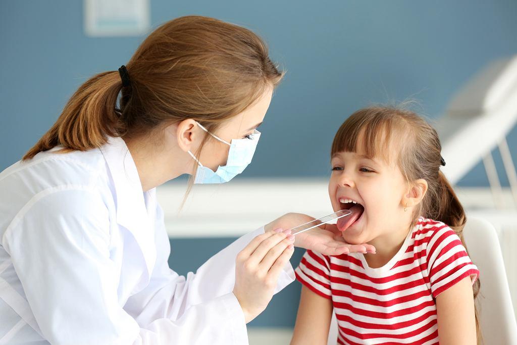 Angina najczęściej objawia się bólem gardła, gorączką i białym, ropnym nalotem na migdałkach. Zdjęcie ilustracyjne