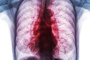 Gruźlica: objawy, leczenie, profilaktyka