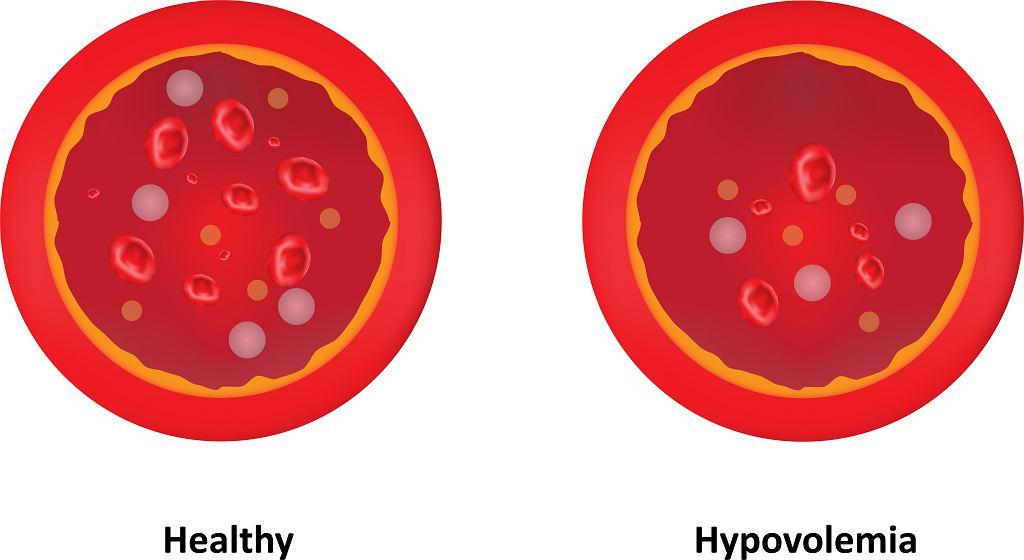 Hipowolemia, zwana fachowo wstrząsem hipowolemicznym, to stan znacznej utraty krwi